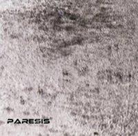 Paresis-That.Black.Form