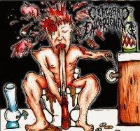 Cerebral Engorgement — Shot Bong Suicide (2010)