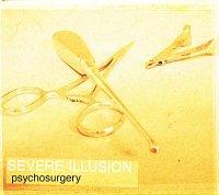 Severe Illusion-Psychosurgery